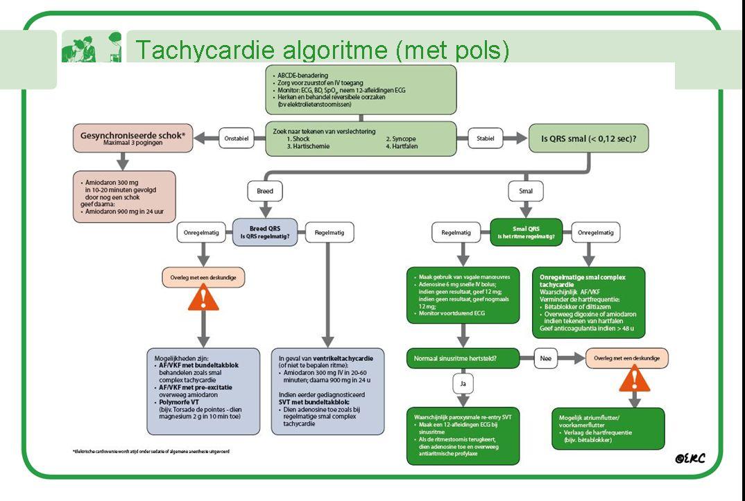Tachycardie schema
